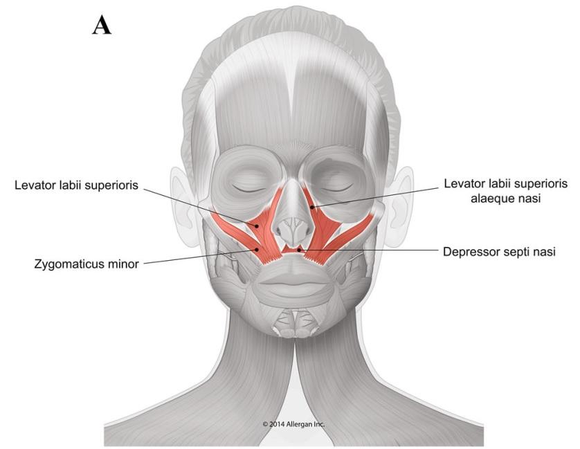 教育培训 4 ,由于骨量不足而缺乏结构支撑,可以导致肌肉异常收缩和